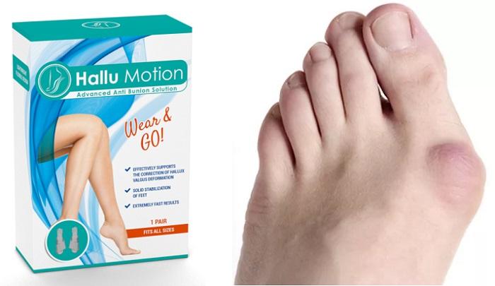 Hallu Motion valguksesta: 28 päivän päästä sinun jaloissasi ei ole enää jälkeäkään vaivaisenluista!